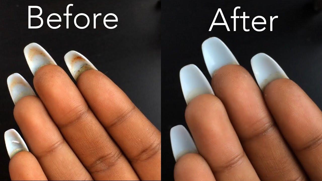 Συντήρηση Gel και Ακρυλικό > Chique & classy Nails Bar